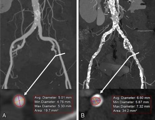 tomografía de corazón y medicion de accesos vasculares