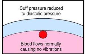 Brazalete desinflado, presión diastólica.