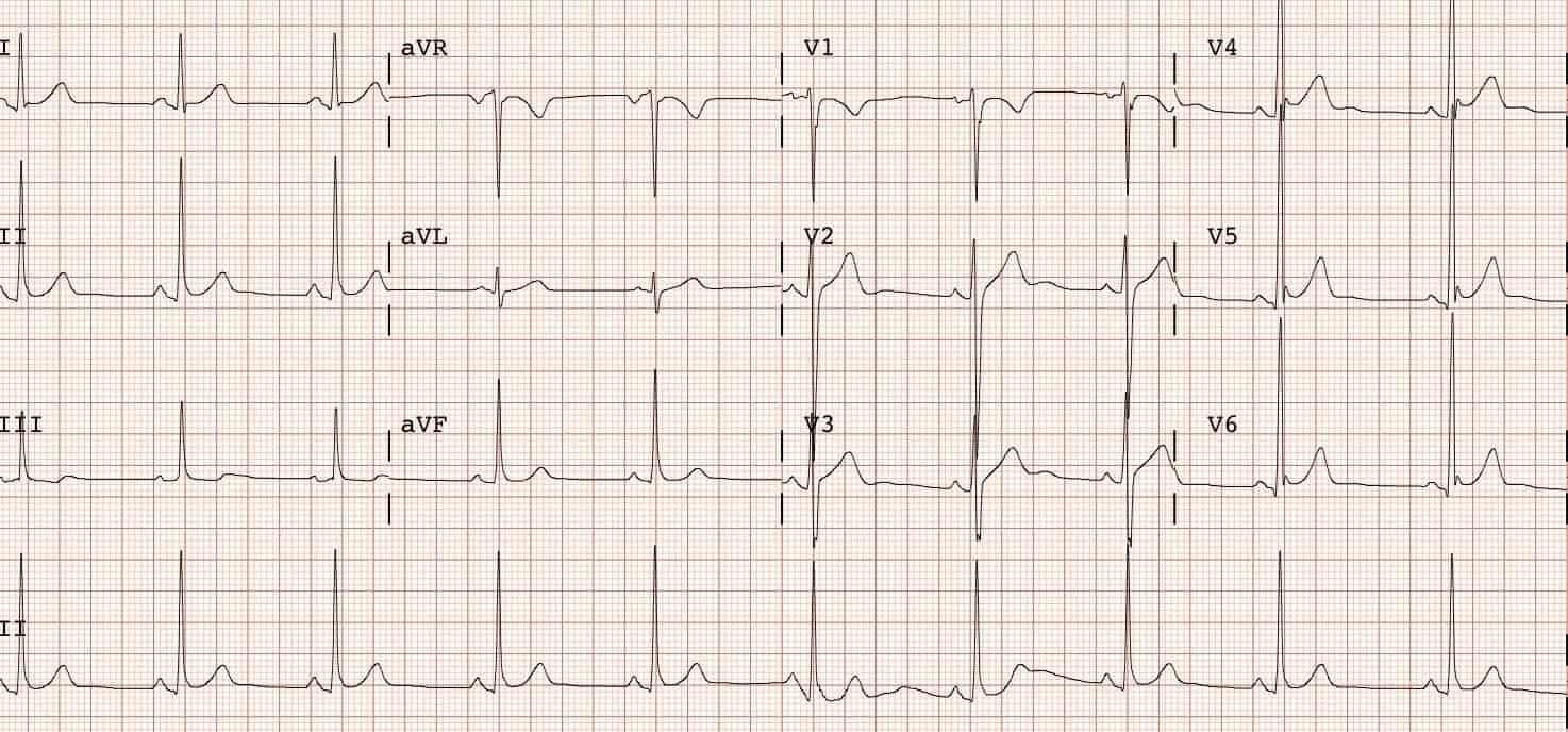 Resultado de imagen de electrocardiograma