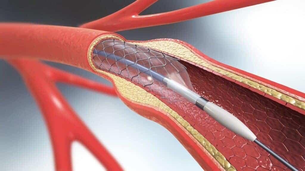 Cateterismo Con STENT Cardiaco