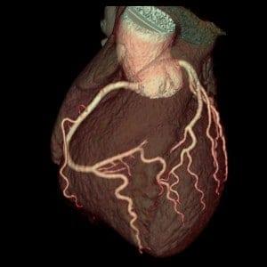 tOMOGRAFIA DE CORONARIAS angiotac coronaria