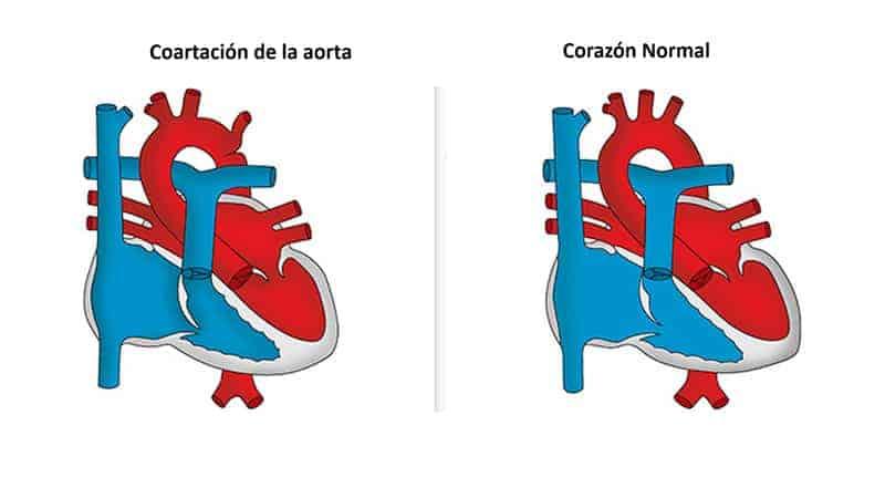 coartacion-aorta