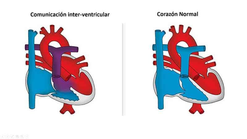 comunicacion-inter-ventricular