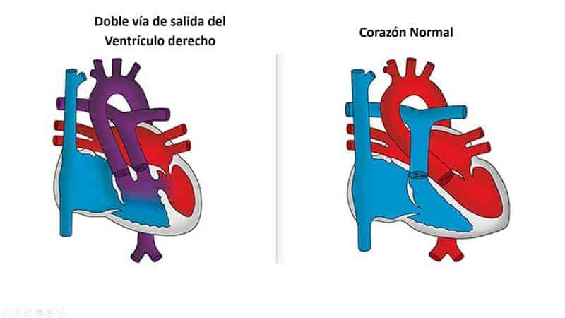 doble-via-salida-ventriculo-derecho