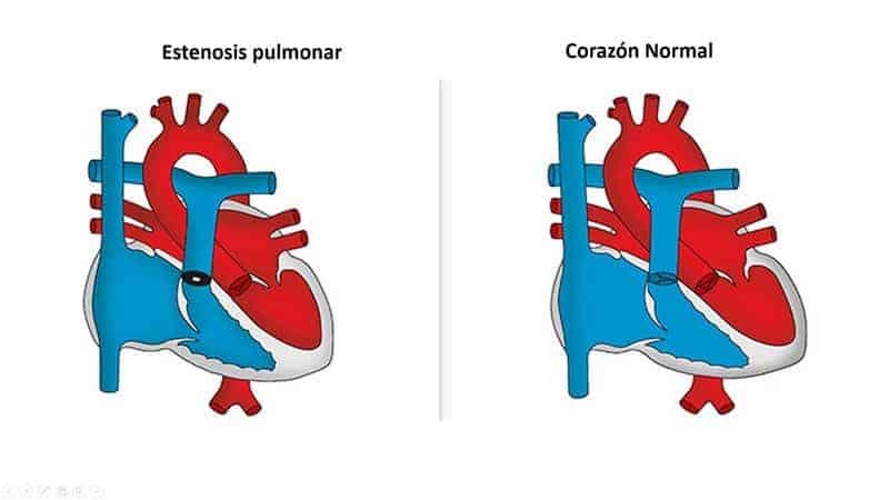 estenosis-pulmonar