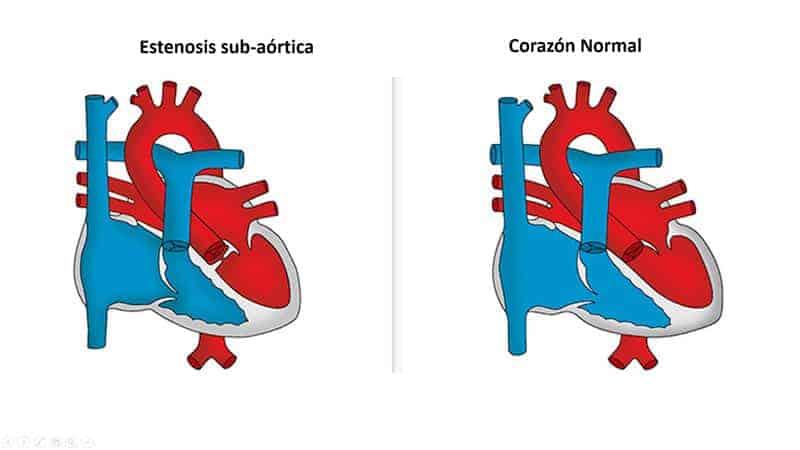 estenosis-sub-aortica