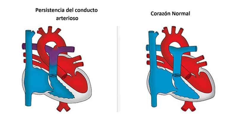 persistencia-conducto-arterioso