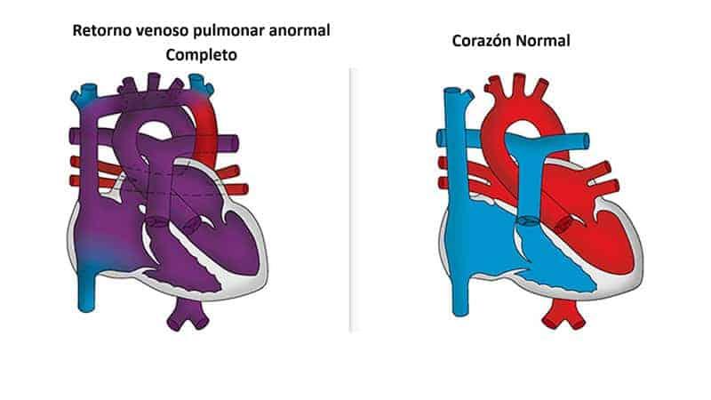retorno-venoso-pulmonar-completo