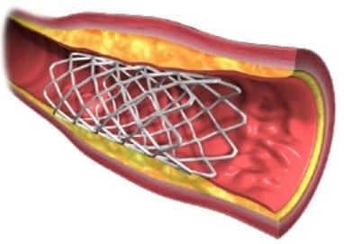 STENT Cardiaco Angioplastia