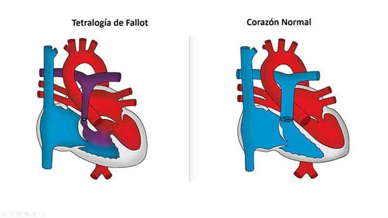 tetralogia-fallot
