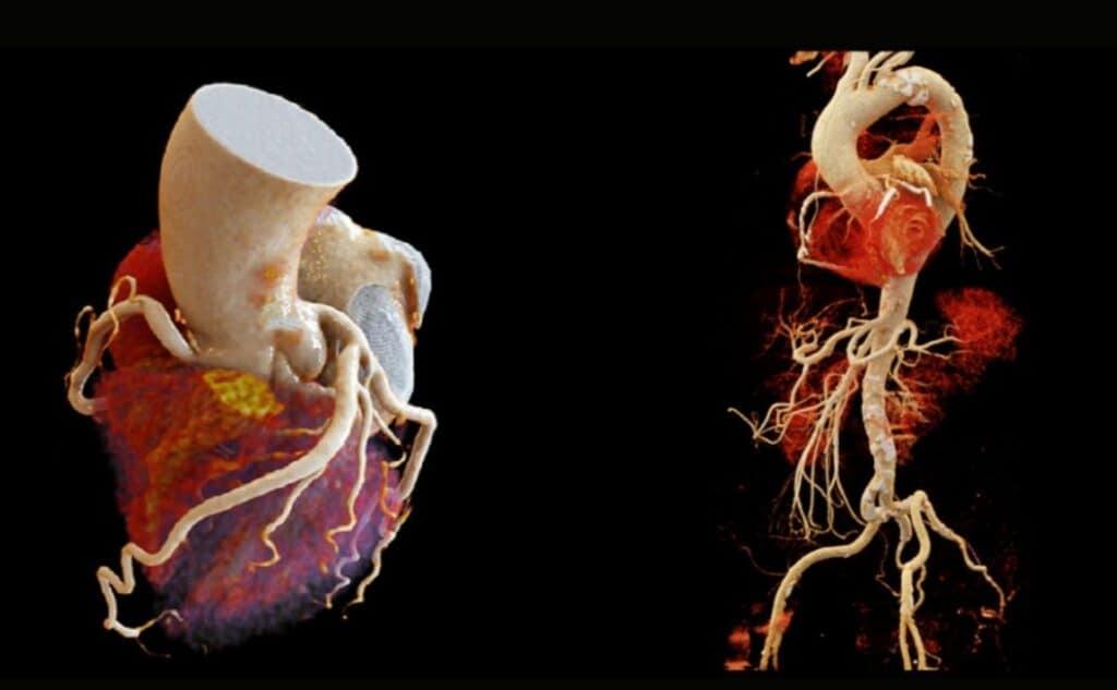 tomografia de coroazon en guadalajara angiotac coronaria