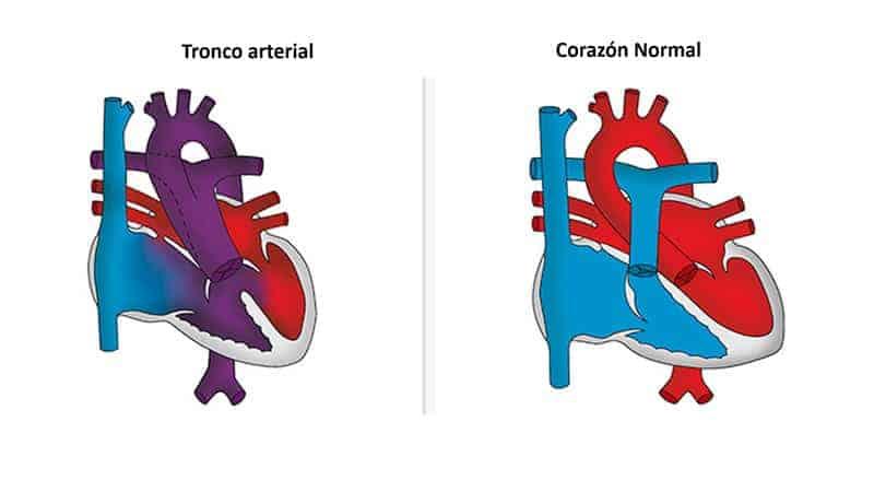 tronco-arterial