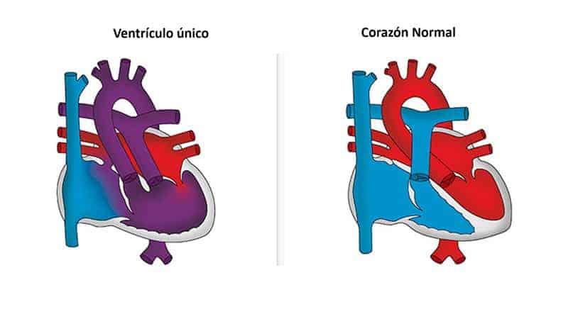 ventriculo-unico